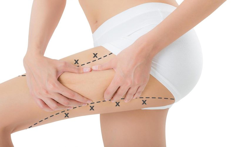 lazer lipoz, lazer liposuction